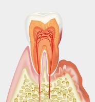 歯槽骨の破壊